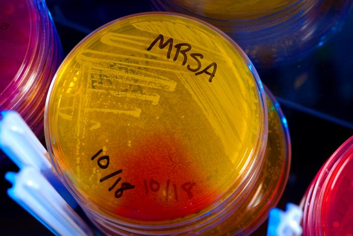 Methicillin-resistant Staphylococcus aureus (MRSA) has spread beyond hospitals. The deadly, antibiotic-resistant bacteria is found on every two out of 100 people in the U.S. Photo courtesy CDC/James Gathany