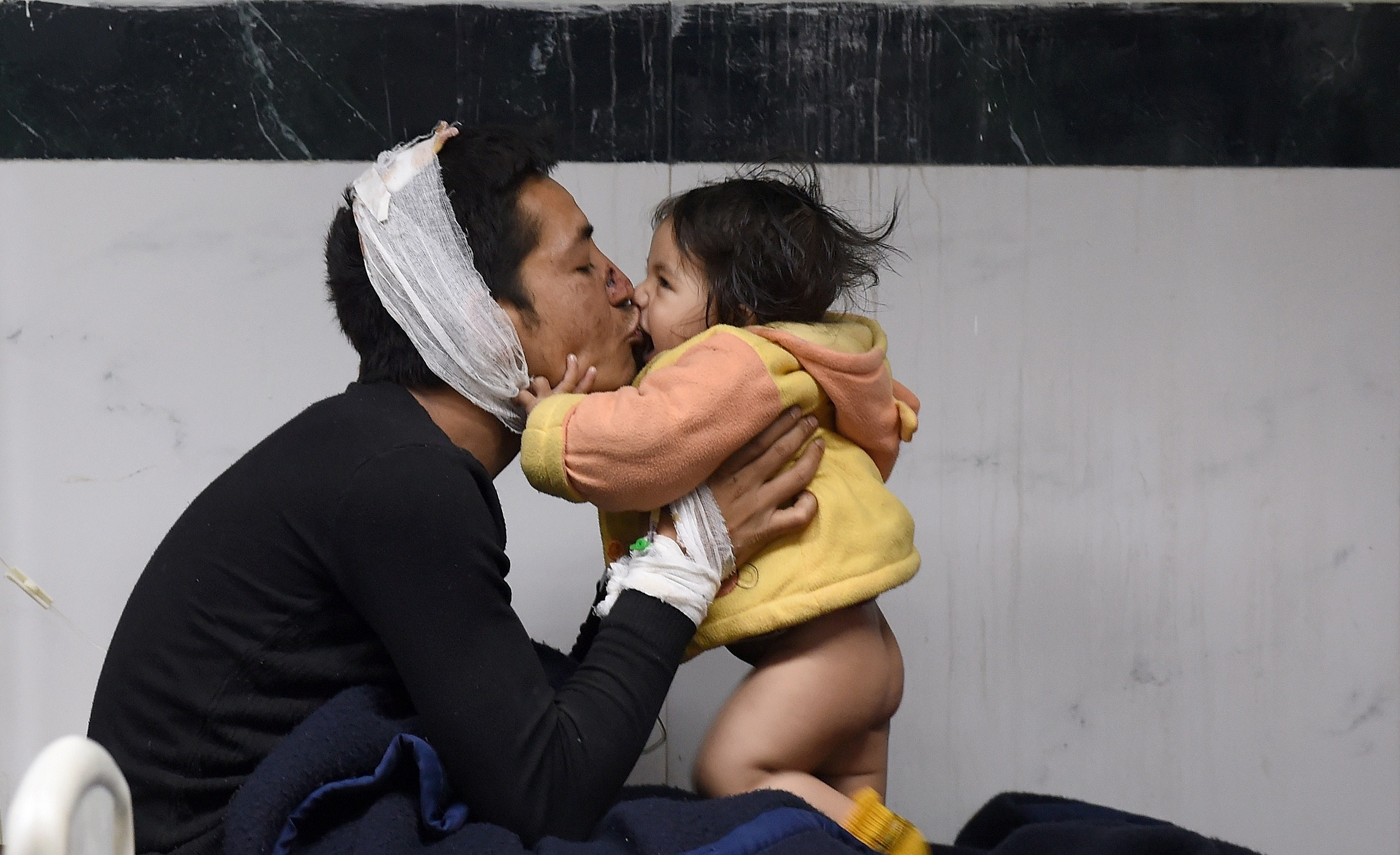 Nepalese resident Suresh Parihar plays with his 8-month-old daughter Sandhaya as he is treated for injuries sustained in an earthquake at a city hospital in Kathmandu on April 26, 2015. Photo byPrakash Singh/AFP/Getty Images.