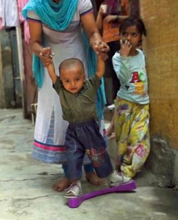 A child wears a purple plastic brace that helps keep his feet from turning back inward. Photo courtesy of miraclefeet