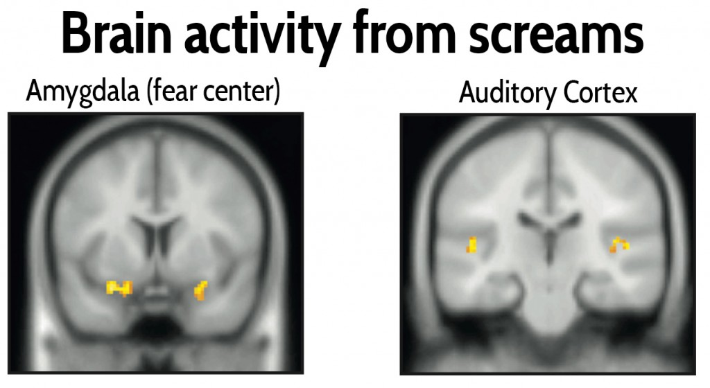 As expected, screams enter our ears and elevate brain activity on fMRI scans in our auditory cortex, which processes sound. But these shrieks also trigger our fear center, the amygdala, which may explain why they command our attention. Courtesy of Arnal et al., 2015, Current Biology.