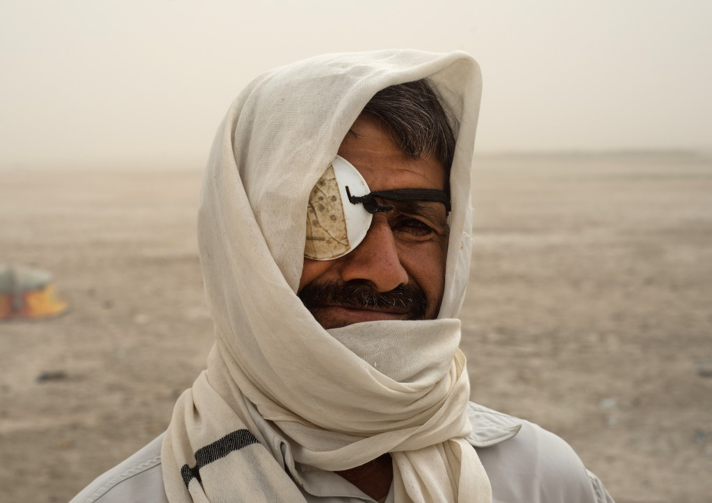 The sand storms lead to lots of eye problems. The people, unable to afford a doctor, try their best to cure themselves with simple remedies. Photo by Mahdi Barchian