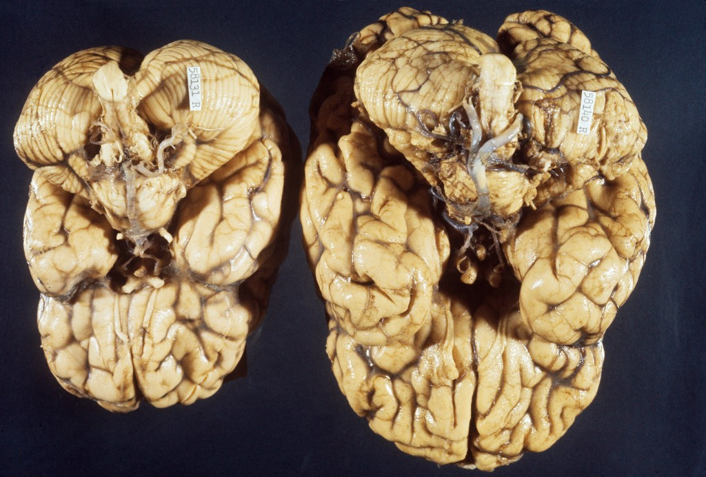 A brain with microcephaly  (left) and a normal brain (right) photographed from below. Zika virus has been linked to microcephaly, a neurodevelopmental disorder in which the brain fails to develop normally, resulting in a smaller than normal brain and head. Photo by Martin M Rotker/via Getty Images