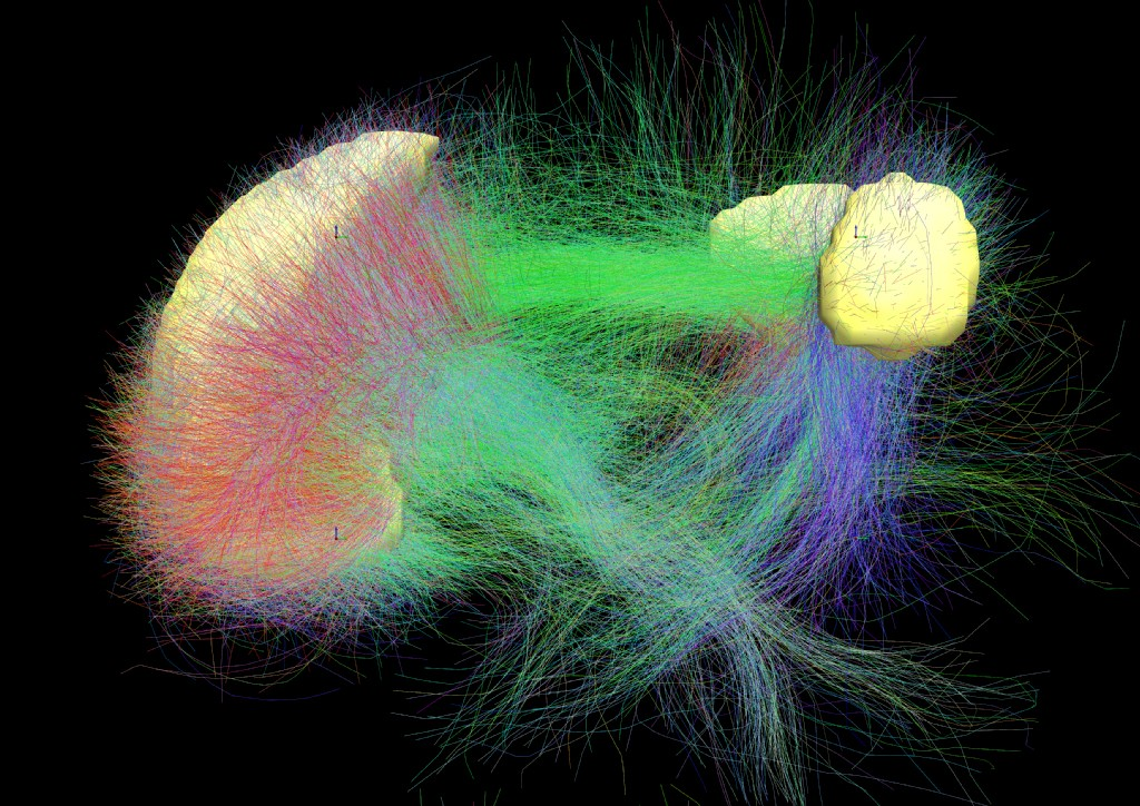 The main brain regions of the default mode network (yellow) and neural circuits (green) that connect them, color-coded by structural traversing direction (xyz -> rgb)  Photo by Andreashorn/via Wikimedia