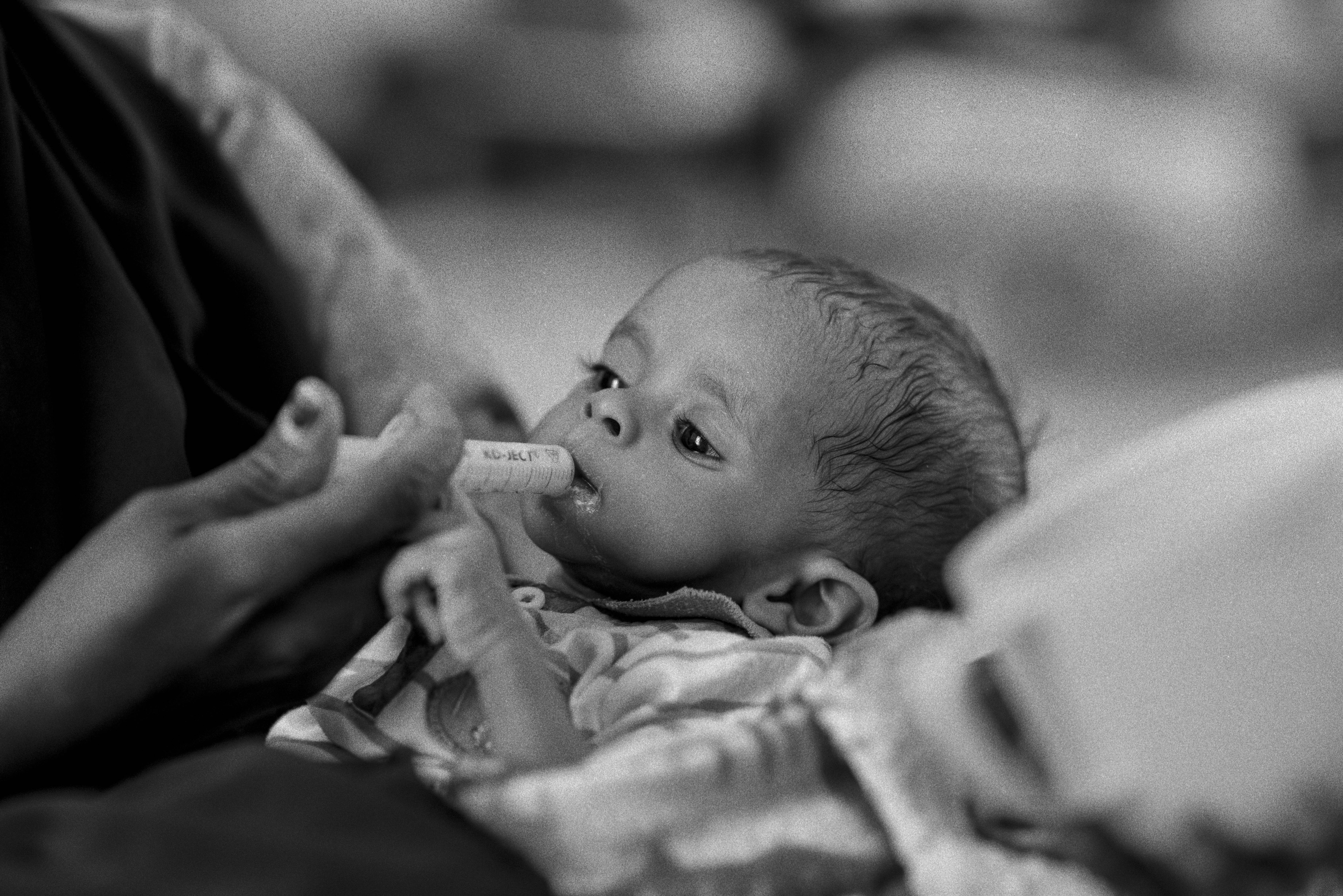 A malnourished child is fed with a syringe. Photo by Sebastian Rich for UNICEF