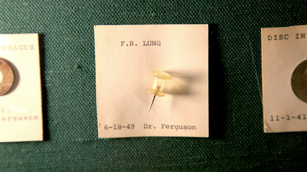 A thumbtack recovered from a child's lung in 1949. Photo by Alissa Ambrose/STAT