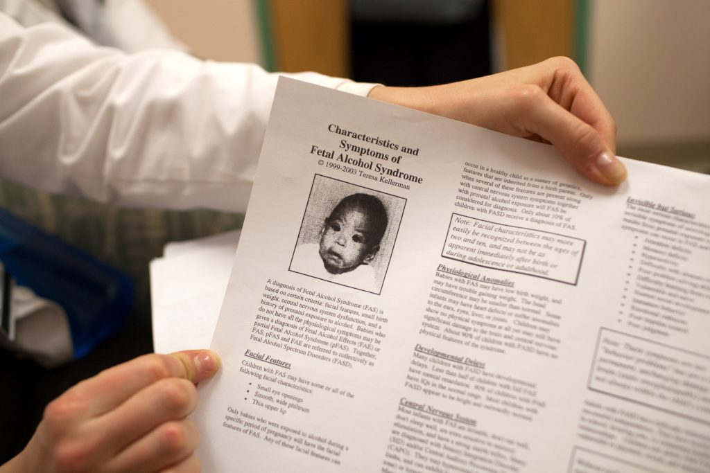 Educational material in Bell's office explains the characteristics of fetal alcohol syndrome. Photo by James Bernal for STAT
