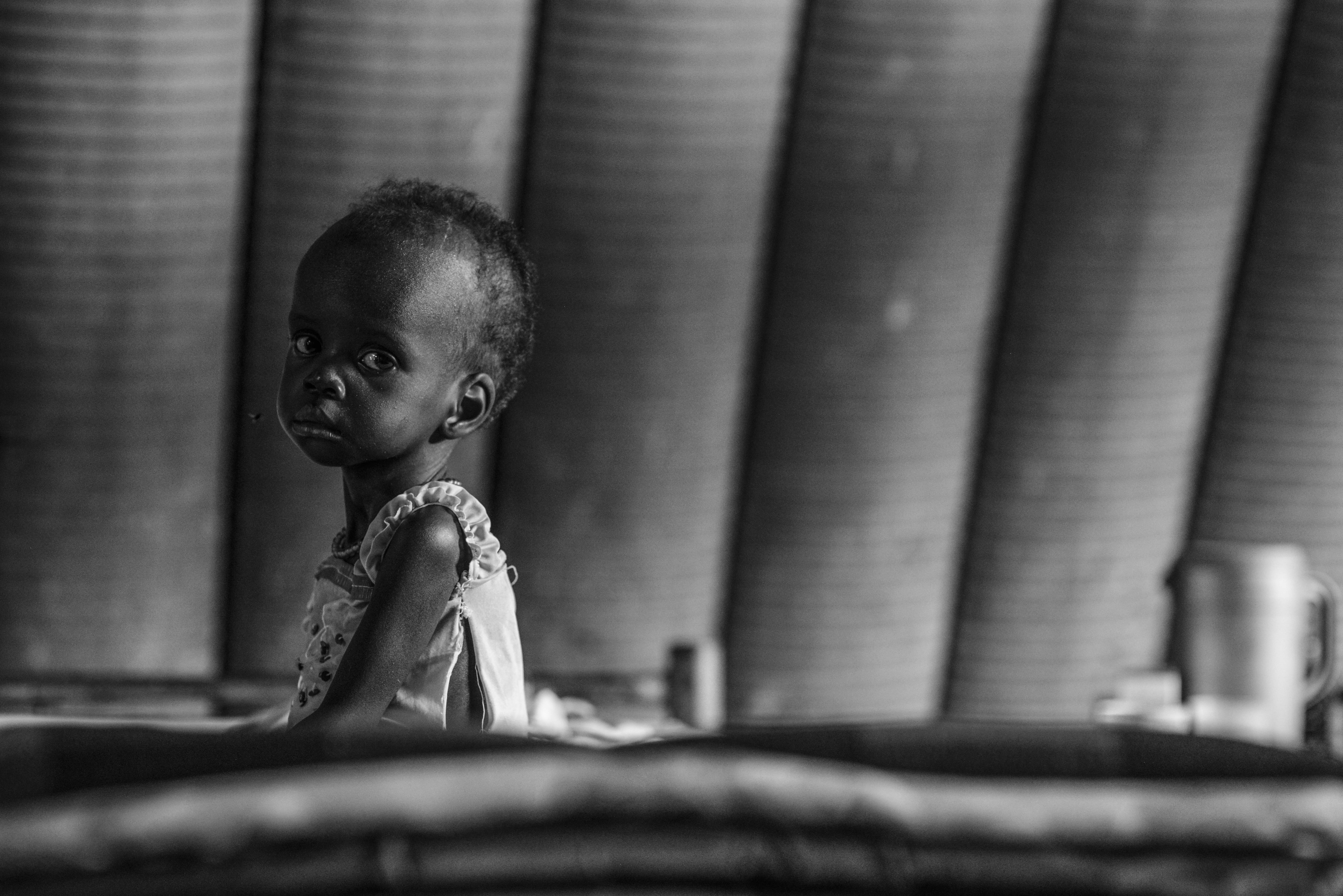 Nyakandai, 1, suffers from severe acute malnutrition in Juba, South Sudan. Such cases have increased due to the fighting in the country. Photo by Sebastian Rich for UNICEF