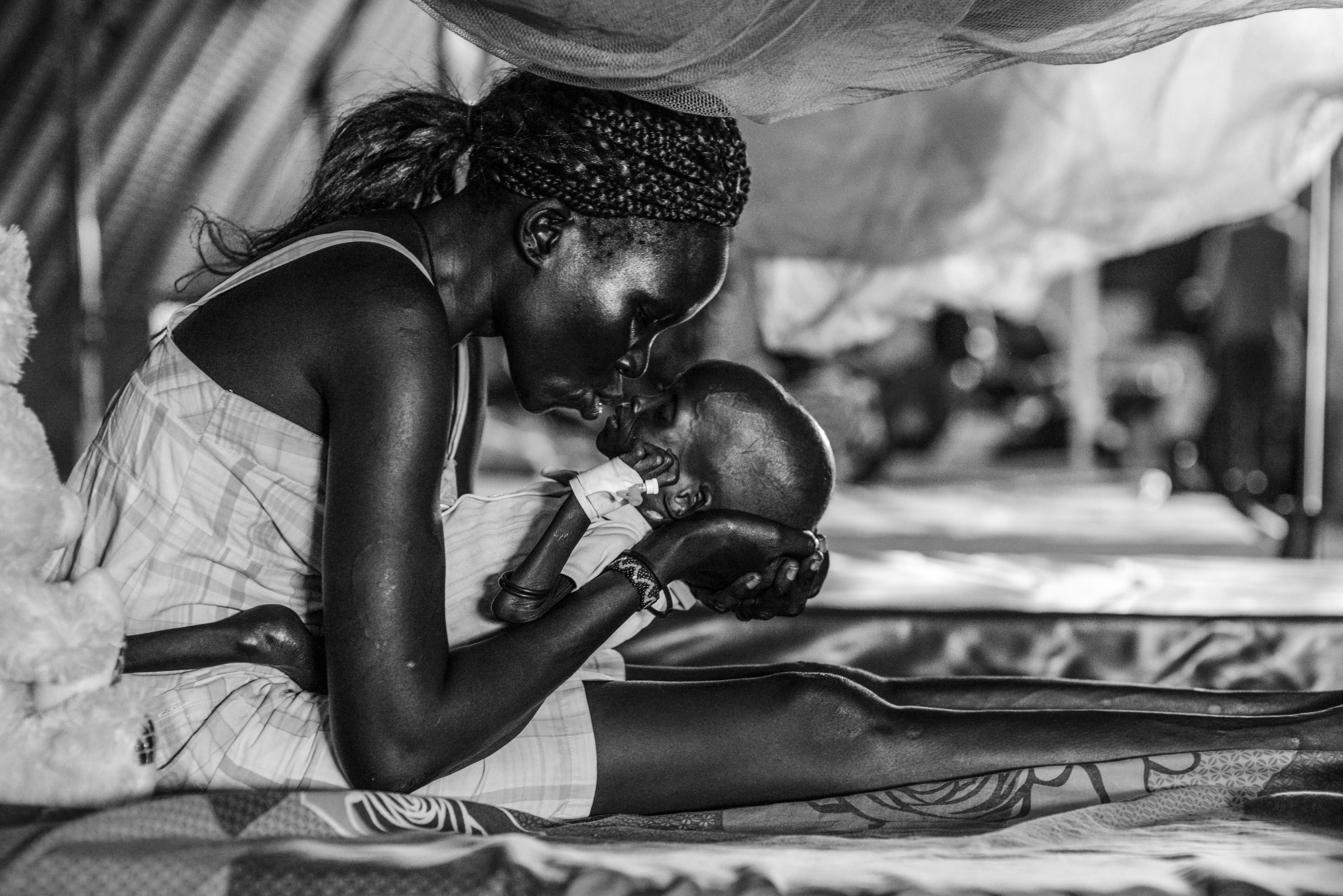 Jal Puok, 1, who suffers from severe acute malnutrition, is embraced by his mother Eliza, 28. Photo by Sebastian Rich for UNICEF