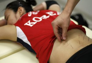 South Korea's women's national volleyball player Lee Sook-ja undergoes an acupuncture session at a gym 150 km south of Seoul on July 5, 2012. REUTERS/Kim Hong-Ji