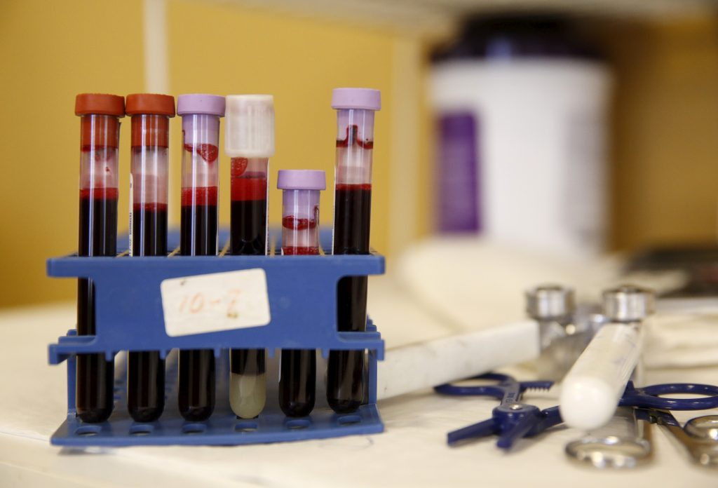 Fda Expresses Concern Over Widely Used Ovarian Cancer Screening Test Pbs Newshour