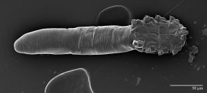 "Scanning electron microscope image of the ""Simon Mite"". Photo by Gary Bauchan, Ron Ochoa and Chris Pooley/USDA – ARS, Electron & Confocal Microscopy Unit, Beltsville, MD."