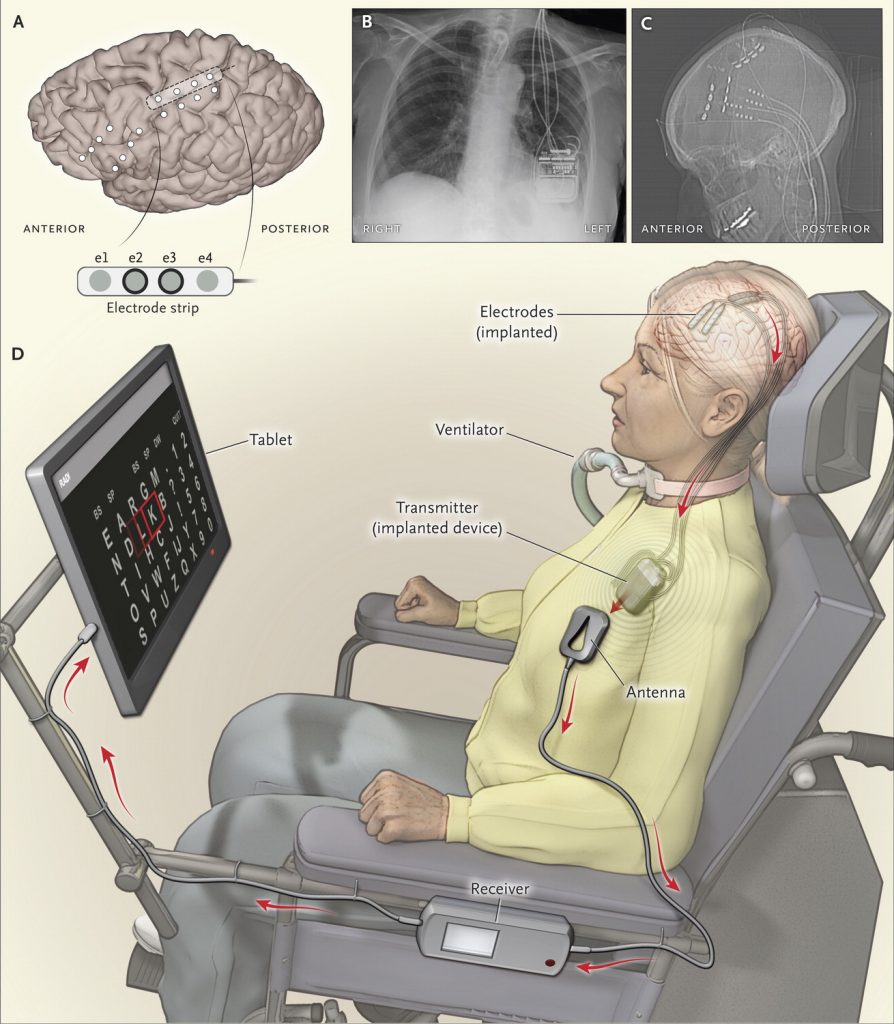 A new brain-computer interface (A, C) that connects to an electronic package in the chest (B) enables HB to select letters on a computer screen using her mind alone, spelling out words at a rate of one letter every 56 seconds, to share her thoughts in this artist's impression (D). Photo by The New England Journal of Medicine 2016