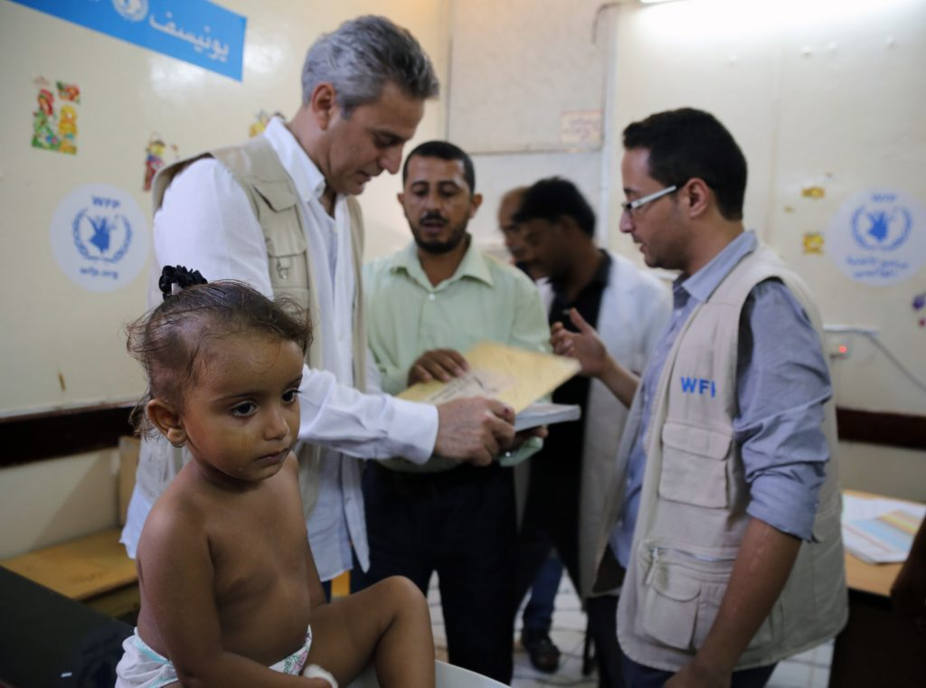 World Food Program regional director Muhannad Hadi visits the Hodeidah Hospital in Yemen, where 2-year-old Aya is being checked for malnutrition. Photo by Abeer Etefa/WFP