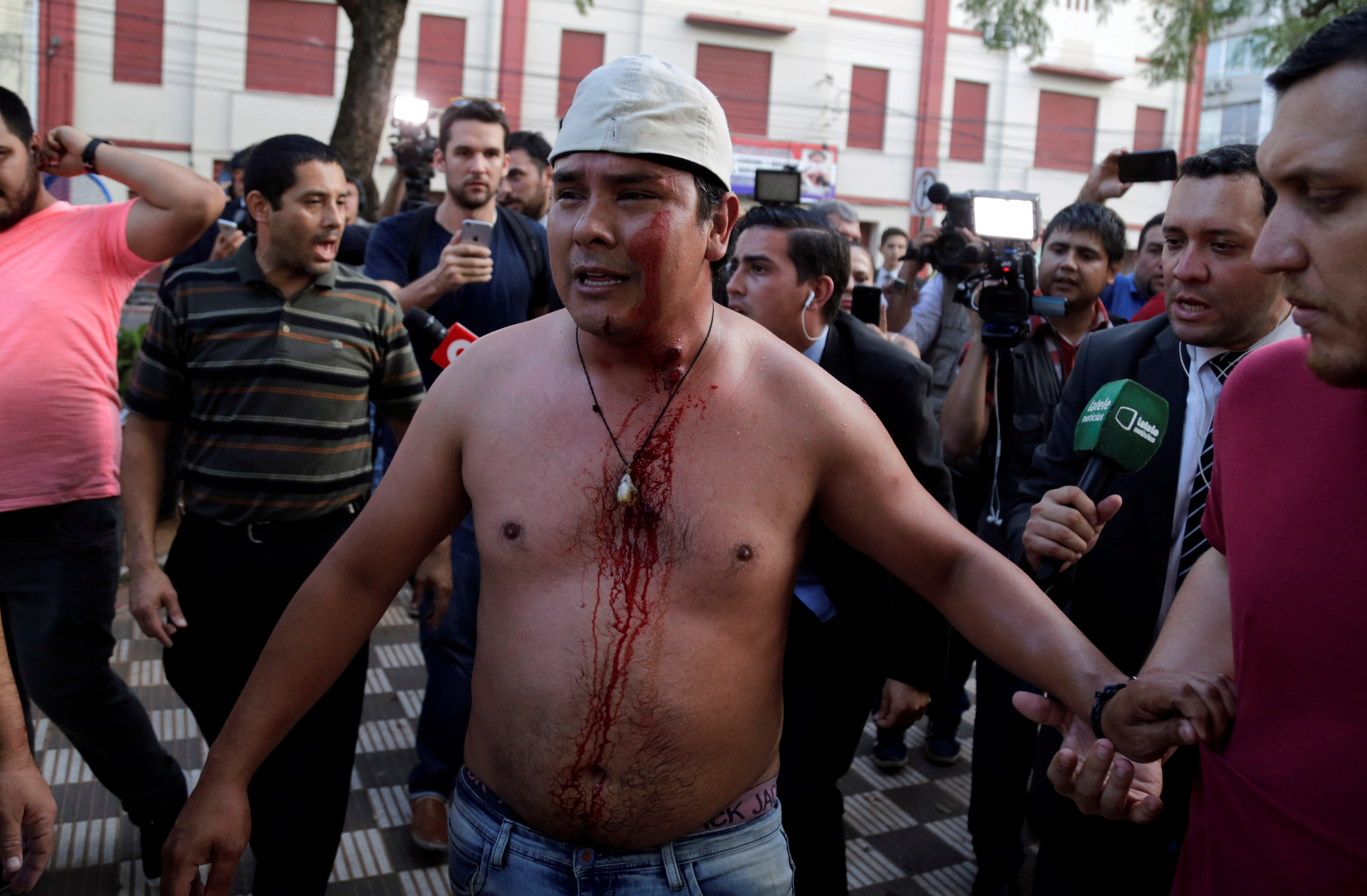A protester, who is wounded by a rubber bullet in clashes with police during a demonstration against a possible change in law to allow for presidential re-election, stands in front of the Congress building in Asuncion