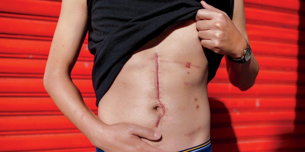 Antonius Wiriadjaja was struck by a random bullet as he walked down a crowded Brooklyn street in 2013. The intended target...