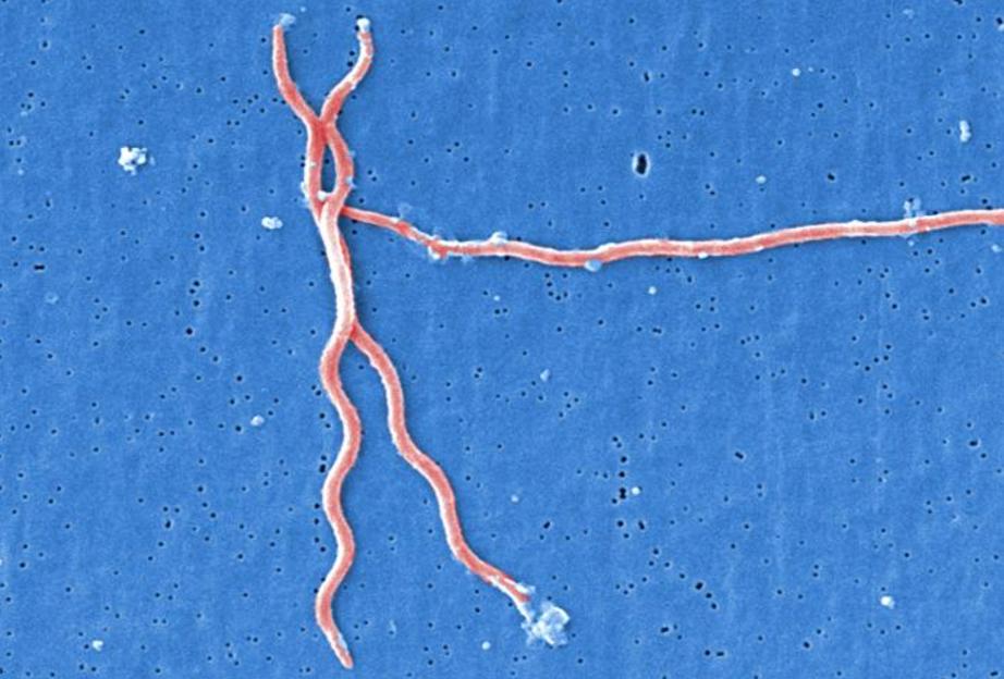 Colorized electron microscope image of three corkscrew-shaped Borrelia burgdorferi bacteria. Photo by CDC