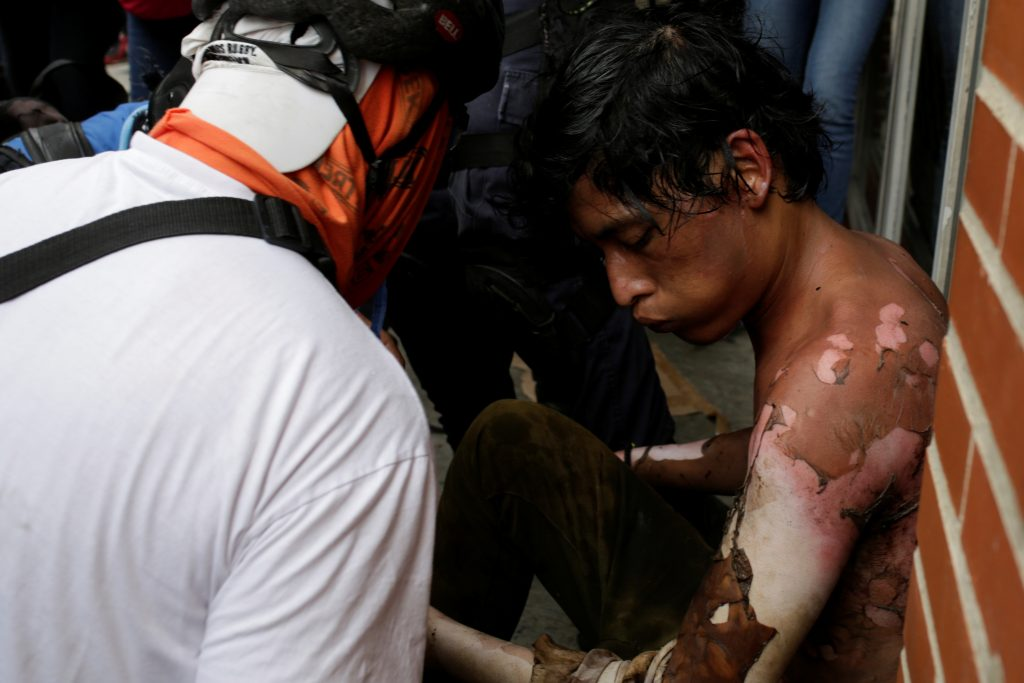 An injured opposition supporter is helped by others during a rally on May 3. Photo by Marco Bello/Reuters