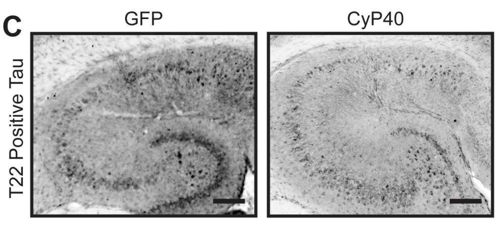 Gene therapy that increases the levels of an enzyme called CyP40 can reduce toxic tangles of tau protein in a mouse model of Alzheimer's disease right panel versus control in left panel). Photo by Baker JD et al., PLOS Biology, 2017.