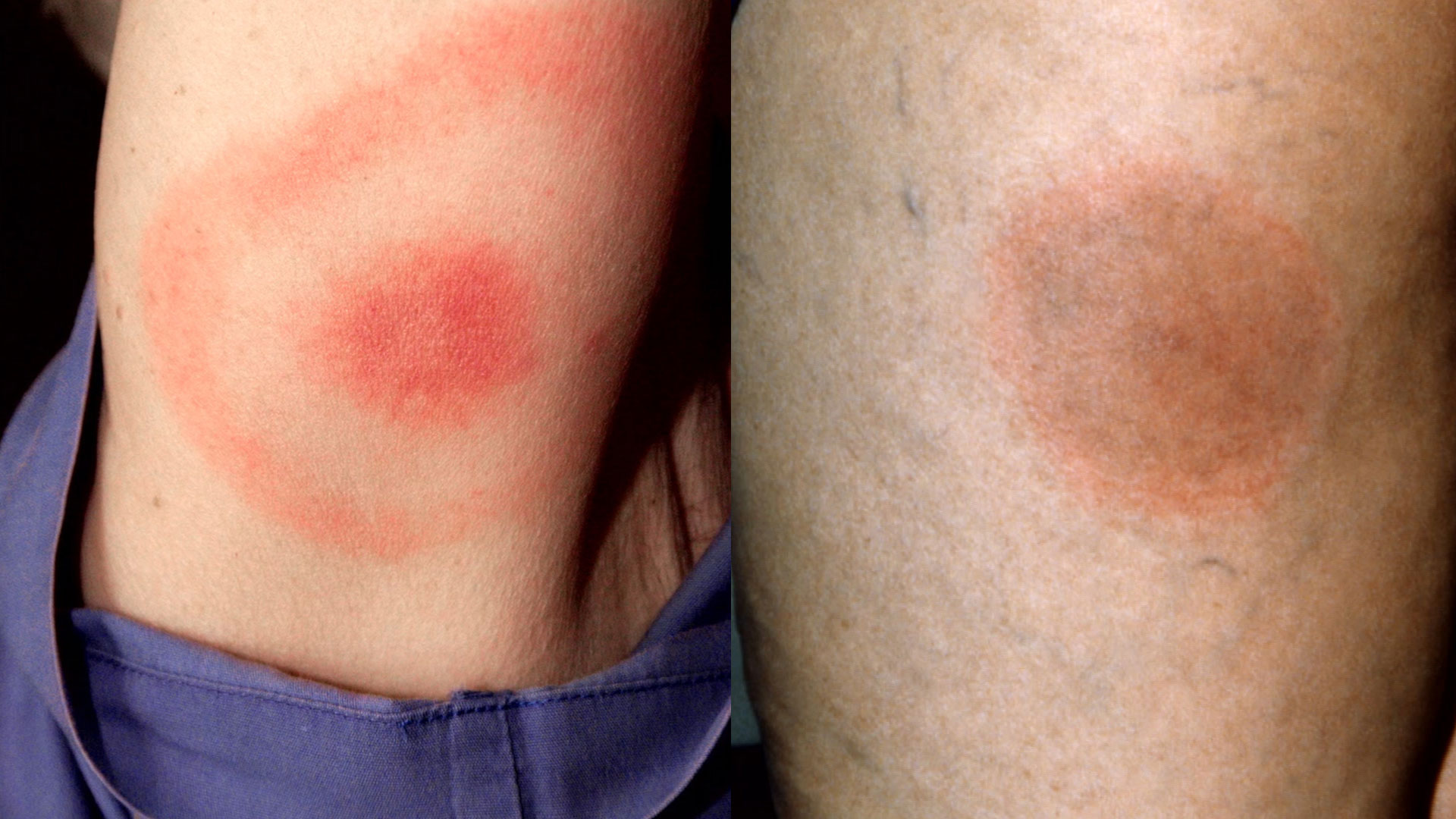 Not all tick bites result in the iconic bullseye rash (left), many can leave a large red mark instead. Photos by: Center for Disease Control and Prevention