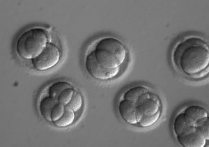 This image shows early embryos two days after co-injection with a gene editing technology called CRISPR. A new study shows by editing at the time of fertilization, each new cell in the developing embryos was uniformly free of a heart disease-causing mutation. Photo by Oregon Health & Science University