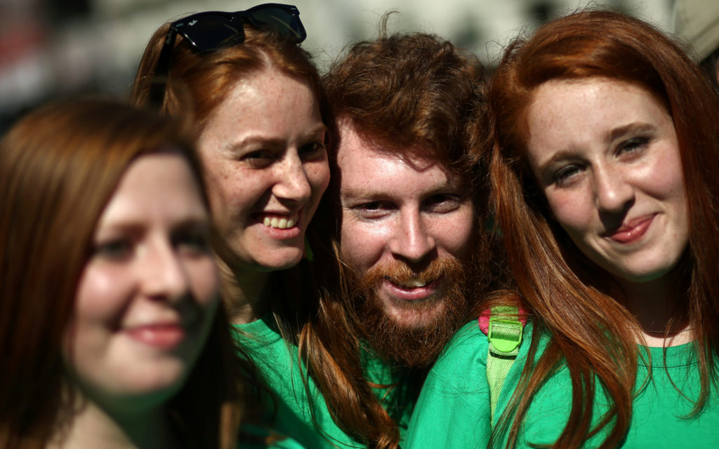 Studies have shown redheads need more anesthesia but fewer opioid painkillers than individuals with other hair colors. Photo by Marcos Brindicci/Reuters