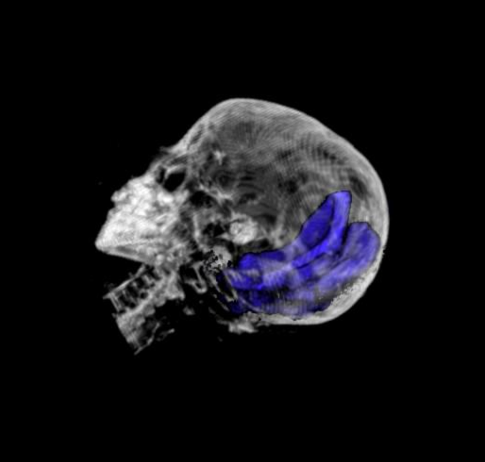 A reconstruction of the bowl-shaped object in the Hibbard mummy's skull. Photo by Northwestern Memorial Hospital