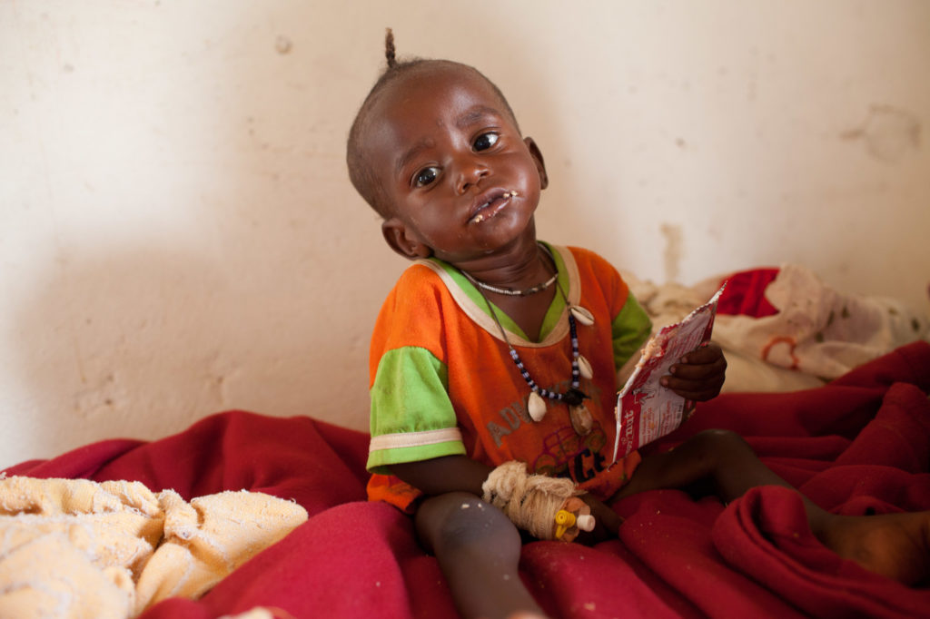 A 15-month-old malnourished child eats a food supplement in Iriba Hospital in Eastern Chad. Photo by Brendan Bannon/CARE