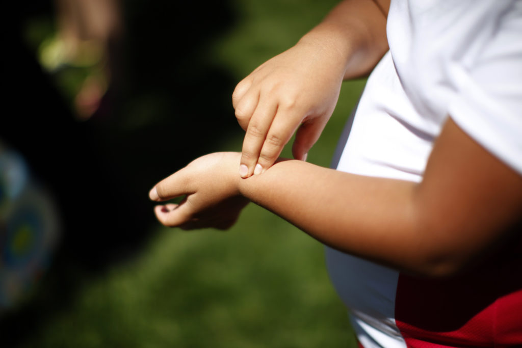 What will it take to reverse childhood obesity? More than a single solution