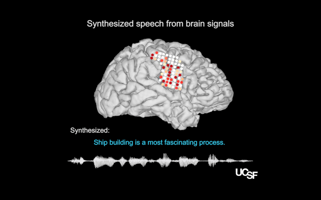 Illustrations of electrode placements on the research participants' neural speech centers, from which activity patterns recorded during speech (colored dots) were translated into a computer simulation of the participant's vocal tract (model, right) which then could be synthesized to reconstruct the sentence that had been spoken (sound wave & sentence, below). Photo by Chang lab and the UCSF Dept. of Neurosurgery