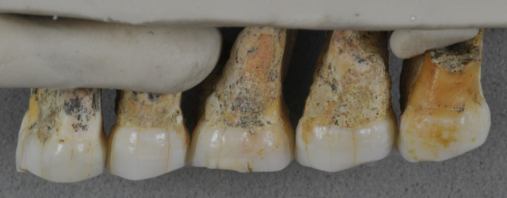 Right upper teeth of the individual CCH6. Photo by Callao Cave Archaeology Project/Florent Détroit