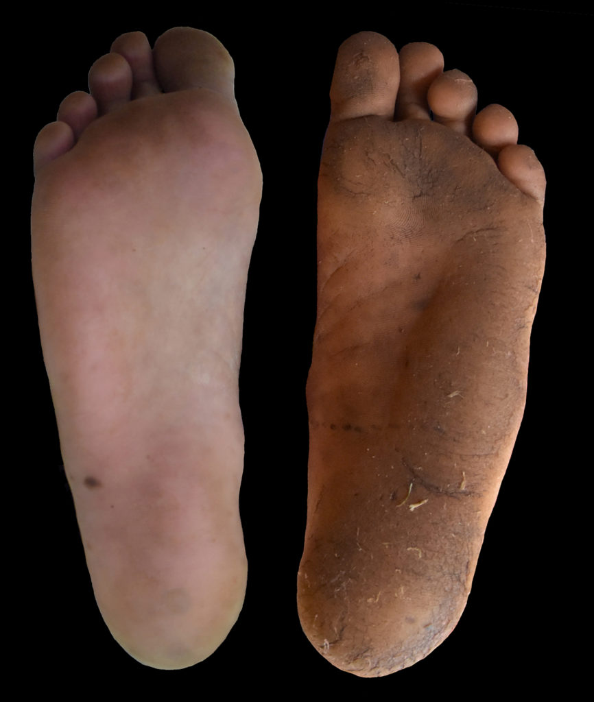 A comparison of the foot calluses of a person who usually wears shoes and a person who usually walks barefoot (right). Calluses are an adaptation to protect feet, but many people have replaced them with shoes. Image by Daniel Lieberman