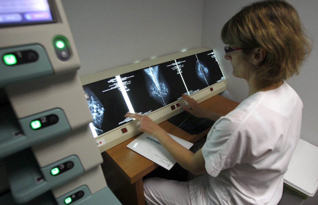 A radiologist examines breast X-rays after a cancer prevention medical check-up at the Ambroise Pare hospital in Marseille, southern France, on April 3, 2008. REUTERS/Jean-Paul Pelissier